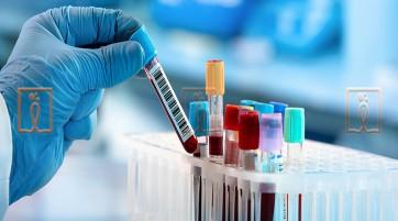 آزمایش خون چگونه به تشخیص MS کمک می کند؟
